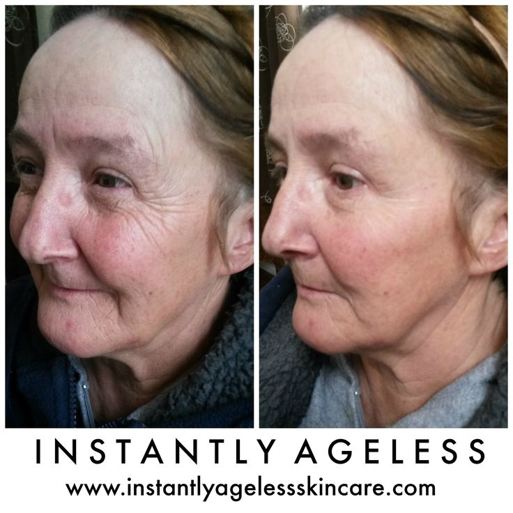 Botox serum - Instantly Ageless, results in 2 minutes! Order your samples here! #instantlyagelesssamples #instantlyageless
