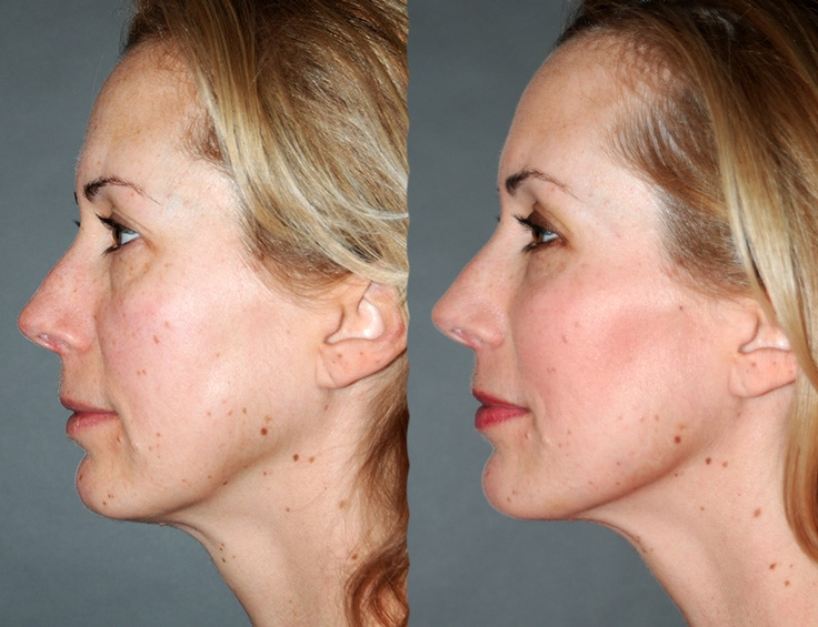 Organic tightening peel facial