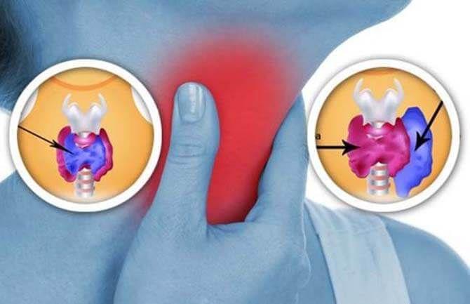 Щитовидная железа: 8 вещей в Вашем доме, которые наносят ей вред