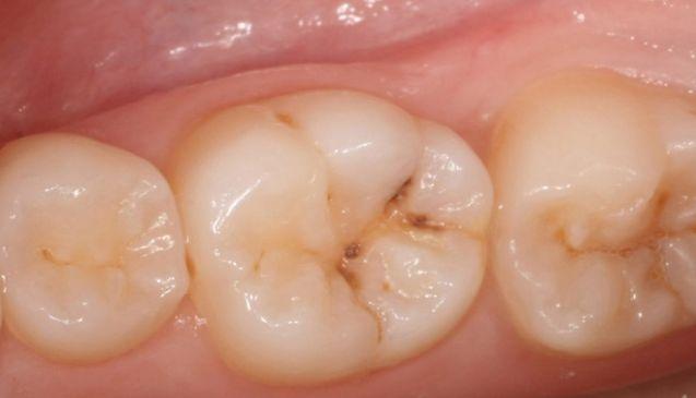 Reibe diese zwei Öle auf dein Zahnfleisch und deine Zähne und du wirst wahrscheinlich keinen Zahnarzt mehr brauchen Claudia Negel