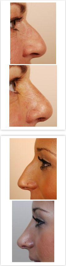 """Nose Job Cost - """"If you're in the market for a rhinoplasty, more commonly known as a nose job, there's a few things you should now about the procedure, including nose job cost. A """"straightforward"""" nose job may involve shaving down a bump on top or refining the tip of your nose. On the other hand, a more complicated nose job may be necessary if you want improvement in breathing or correction of complications associated with a previous nose job..."""""""