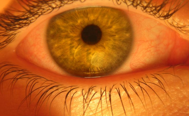 How to Care for Dry, Itchy Eyes