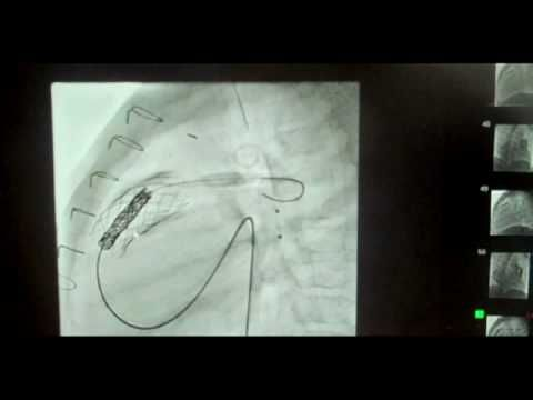 Melody Heart Valve Procedure - St. Louis Children's Hospital-maybe someday instead of Open Heart Surgery
