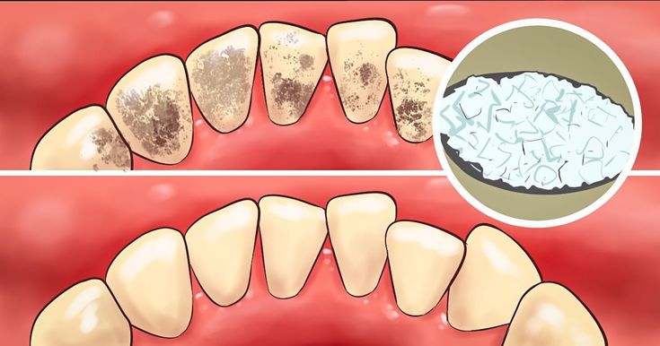 Usually, in order to eliminatedentalplaque, we go to a dentist. However, believe it or not, there are numerous other alternative methods for plaque removal that we can do at the comfort of our own homes. Below, we've made a list comprised of the most effective plaque-removing methods. How to Remove Plaque at Home Proper brushing... #TeethPlaqueRemoval #removeplaqueathome