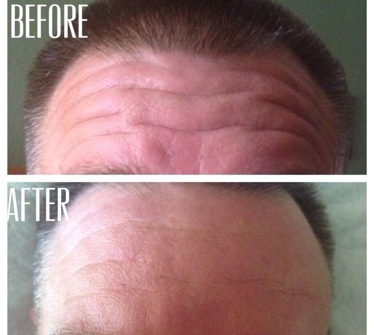 My dads before and after with using the MicroE only one time! https://ngriffin.myrandf.biz