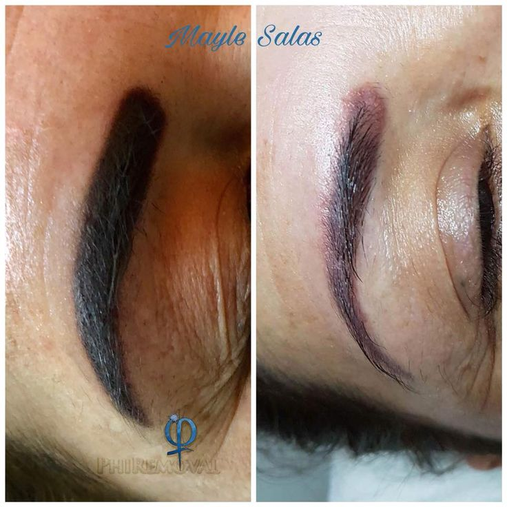 Eyebrow removal procedure this is an amazing result from
