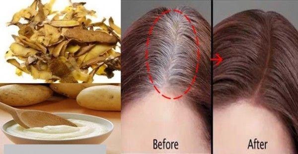 Η λύση σε ένα από τα μεγαλύτερα προβλήματα των γυναικών! Καλύψτε φυσικά τα γκρίζα μαλλιά με την βοήθεια της πατάτας!