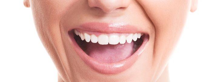 Wittere tanden - een stralend wit en gezond gebit zonder te bleken