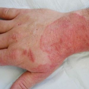 Top 10 Natural Cures For Fungal Infections