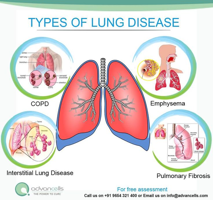 Stem Cell Treatment For Lung Disorders Copd Emphysema
