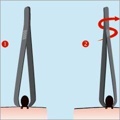 Que faire en cas de morsure de tiques? (Assurance maladie, France)