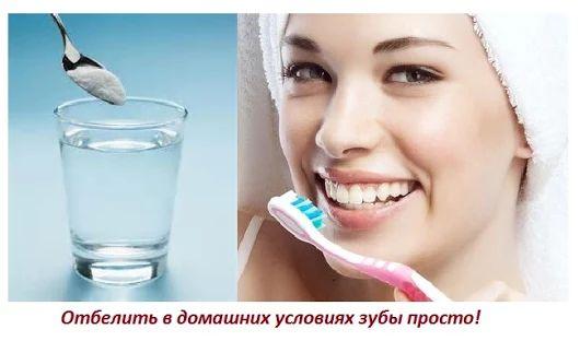 Можно ли чистить зубы пищевой содой - Простые и быстрые рецепты лечения от ZdravolinE