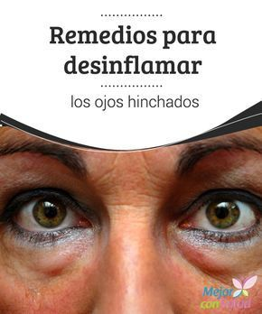 Remedios para desinflamar los ojos hinchados Si tenemos tendencia a tener los párpados hinchados puede deberse a desequilibrios en nuestra alimentación, por lo que deberemos optar por incluir más frutas y verduras y beber más agua