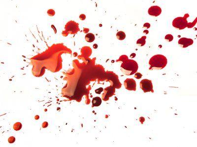 Receta de Cómo quitar las manchas de sangre de la tela
