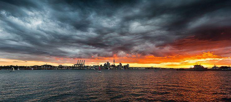 Auckland Burns