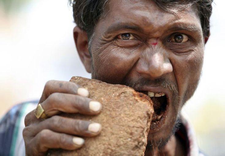 «Камнеежка»: Индиец более 20-ти лет ест камни и кирпичи
