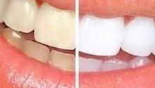 Wybielanie zębów. Białe i zdrowe zęby to nasza wizytówka, która pozwala nam czuć się pewniej zarówno w życiu zawodowym jak i prywatnym. Śnieżnobiały uśmiech to w obecnych czasach symbol sukcesu. Jak wskazują badania, aż 80–90% z nas pragnie białego i zdrowego uśmiechu. #dentistry
