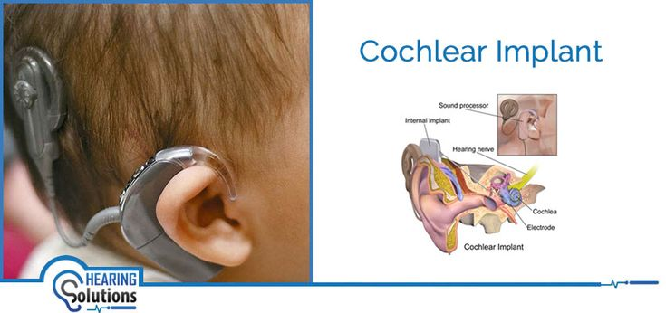 Cochlear Implant a type of hearing aids that help the people who suffer from severe to a profound hearing loss. According to degree of hearing loss cochlear implant treatment conducted by Hearing Implant Specialist
