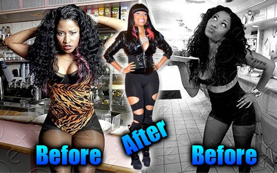 Nicki Minaj Before and After | Nicki Minaj Pictures Before and After (4 pic) - Nicki Minaj Pictures ...