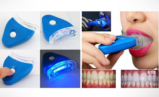Amazing White Light Teeth Whitening System Kit At Rs. 339 Only  #couponndeal #health #whiteteeth #whiteningemitter  http://www.couponndeal.com/coupon/white-light-teeth-whitening-system-kit