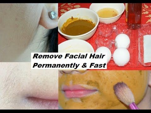 Want To Get Rid Of Those Unwanted Facial Hairs Permanently At Home? Try This Recipe And Get Result Overnight - Lavish Trend