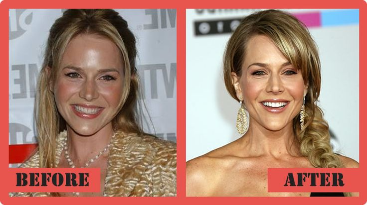 Julie Benz Plastic Surgery Before And After Julie Benz Plastic Surgery #JulieBenzPlasticSurgery #JulieBenz #celebritypost
