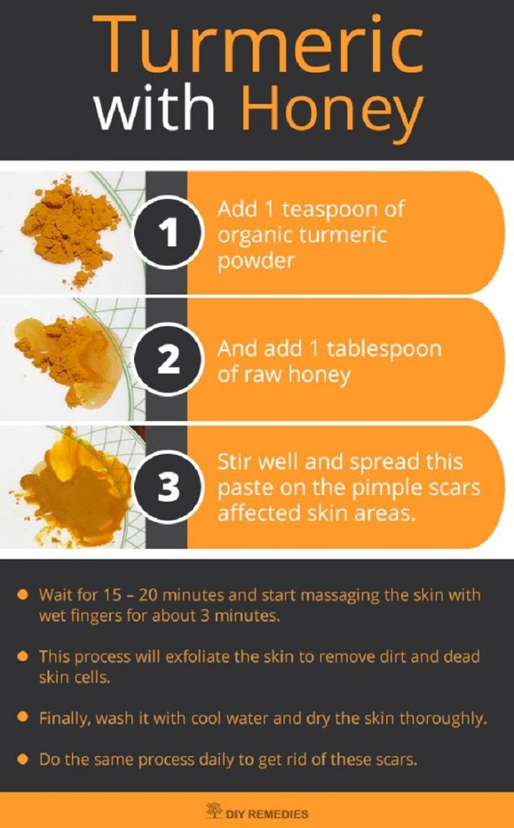Use Turmeric and Honey to Banish Acne Scars - Banish Acne Scars Forever: 6 Simple DIY Ways to Get Clean Skin