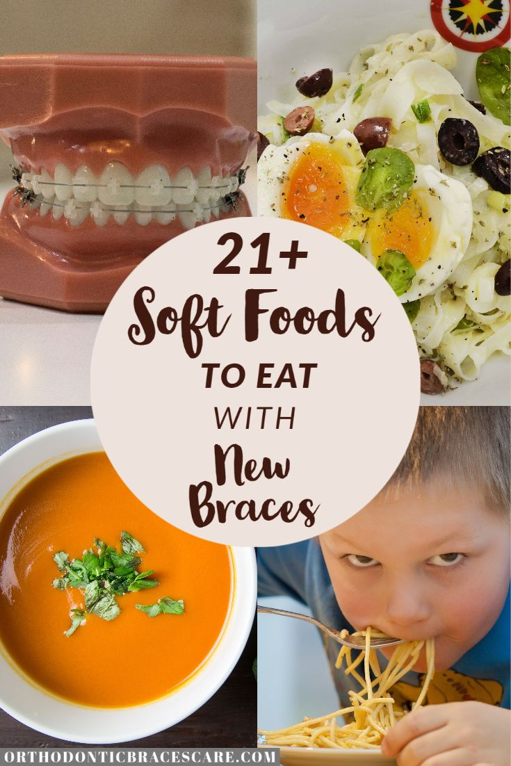 21 soft foods to eat with new braces for kids in 2020