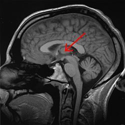 "The thalamus (from Greek θάλαμος, ""inner chamber"") is a midline symmetrical structure of two halves, within the brains of vertebrates, situated between the cerebral cortex and the midbrain. Some of its functions are the relaying of sensory and motor signals to the cerebral cortex,and the regulation of consciousness, sleep, and alertness."