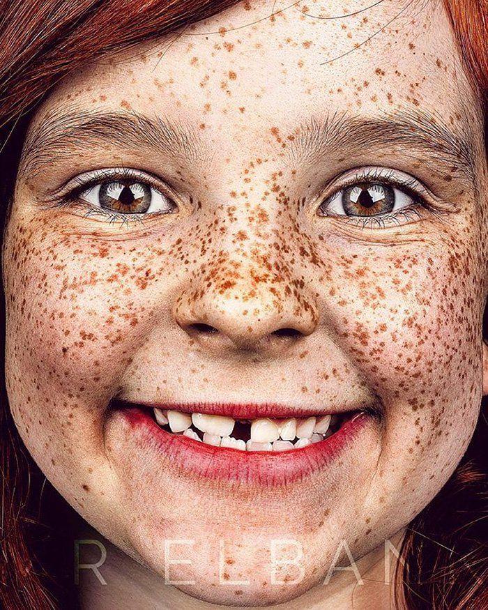 Brock Elbank freckles beauty11
