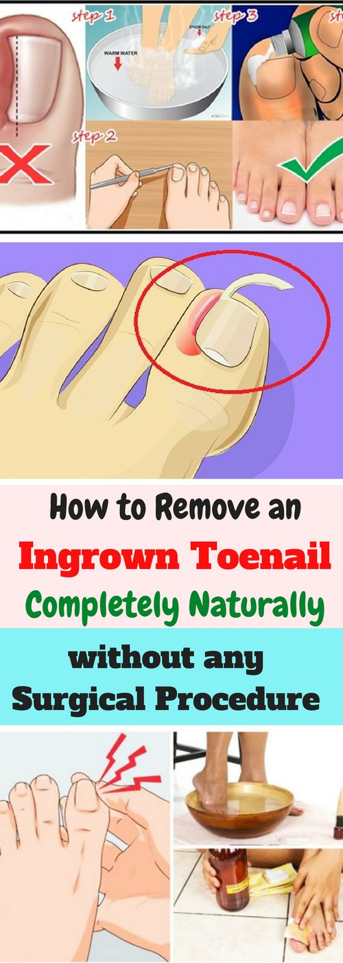 An ingrown nail is a problem for many people. It is a condition where the nail grows on one side and underneath the skin. It is a painful condition and there are conventional and surgical methods to deal with it. You can also try to treat it at home completely naturally but it needs to be in an early phase without any complications.