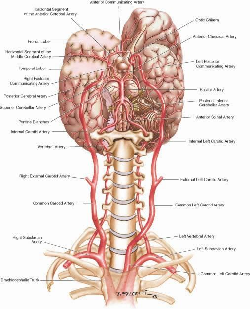 Carotid Artery Dissection-Also known as the Ticking Time Bomb