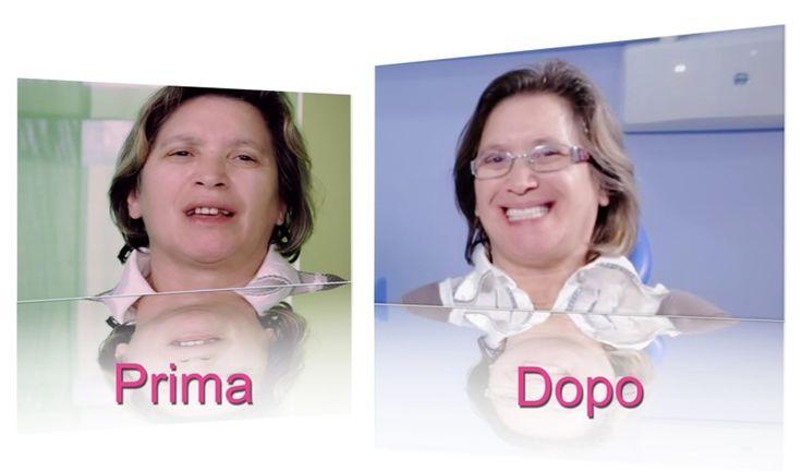 Caso clinico – Implantologia arcata inferiore e superiore  http://www.cannizzostudio.com/caso-clinico-3/