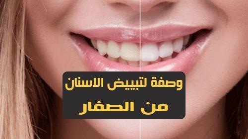 أسهل طريقة لعلاج اصفرار الأسنان في 4 خطوات فقط أصبحت ثقافتنا مفتونة بشكل متزايد بالأسنان البيضاء مع قصص إخبارية أمامنا كل يوم تظهر لنا المشاهير بأسنان بيضاء لا