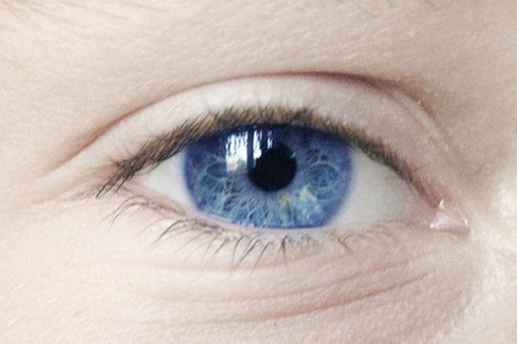 ¿Por qué tengo una burbuja en el ojo? | Muy Fitness