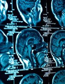 Étude → Observation du cerveau lors de tâches simples= chez les patients atteints de fibromyalgie le cortex  (responsable du traitement, auditif et des signaux visuels) n'a pas été activé normalement. D'autres régions du cerveau étaient activées qui ne sont pas activées chez les sujets en bonne santé.