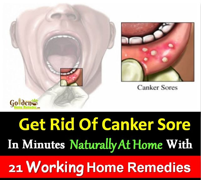 Canker Sore Home Remedies: 21 Treatments That Cure, How To Get Rid Of Canker Sore, Canker Sore Causes, Symptoms and Treatments for Canker Sore