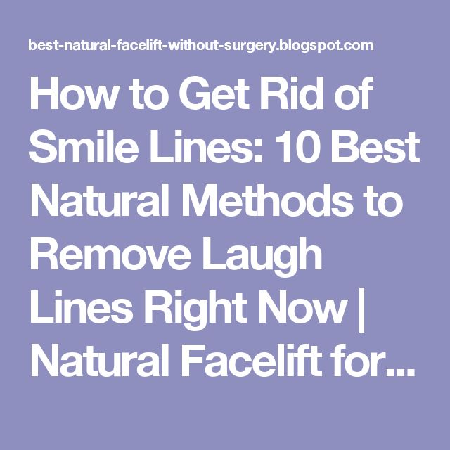 How to Get Rid of Smile Lines: 10 Best Natural Methods to Remove Laugh Lines Right Now   Natural Facelift for Wrinkles and Anti Aging Skin Care Products