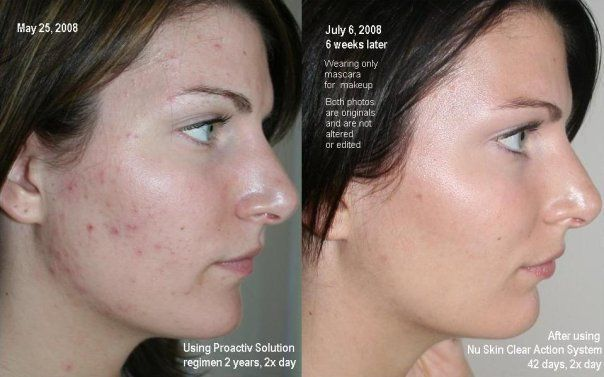 After using Nu Skin Clear Action System 42 days, 2x day compared to 2 years, 2x day of Proactive Solution!!