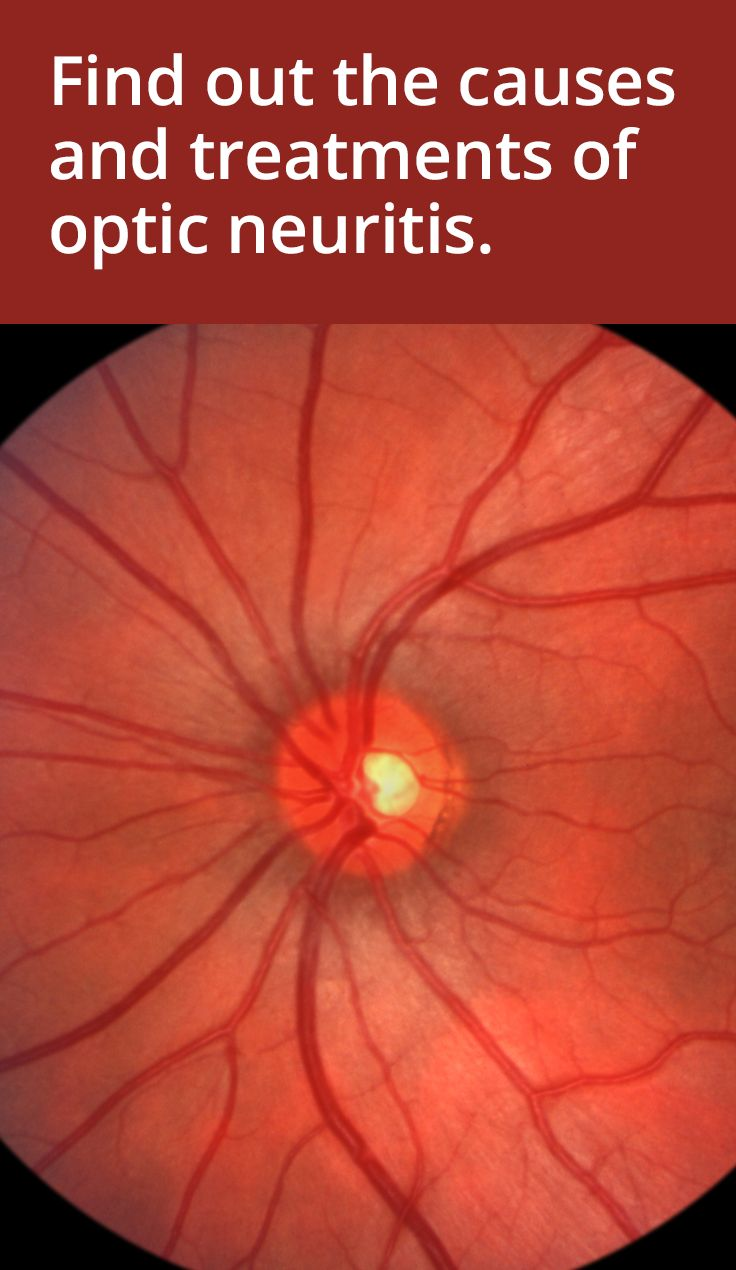 Causes and treatments of optic neuritis and neuropathy