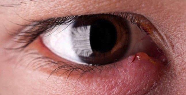 Home Remedies for Eye Stye Treatment