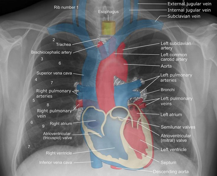 723 Best Radiography Images On Pinterest Nursing Schools