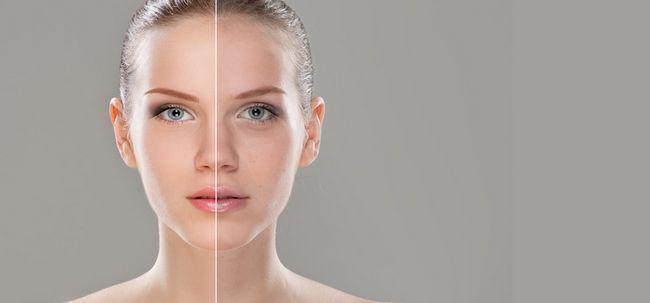 20 remèdes maison efficace pour se débarrasser de la peau terne