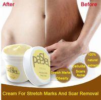 Creme para estrias e cicatriz remoção poderosa para estrias maternidade reparação creme cicatriz Remove corpo pele cuidados pós-parto