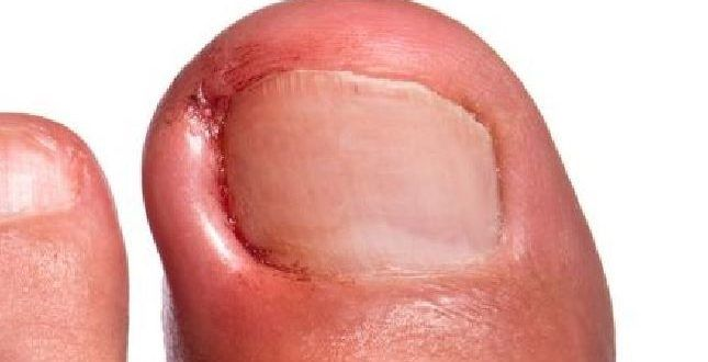 how to clean ingrown toenail