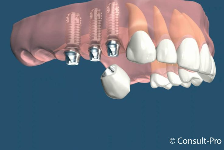 ♥♥♥ Remboursement implant dentaire : indemnisation de la part de la sécurité sociale et la mutuelle ♥♥♥