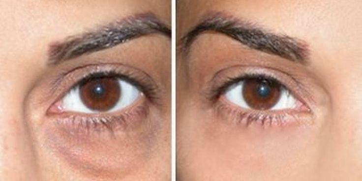 7 Naturheilmittel, die dunkle Augenringe behandeln könnten – All Health Alterna …