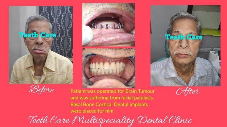 Dentist in kolkata best full mouth dental implant