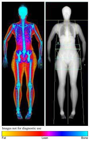 19 best medical imaging images on pinterest medical imaging dual energy x ray absorptiometryso known as bone densitometry is used to check bone density one of the many medical imaging modalities we service sciox Choice Image