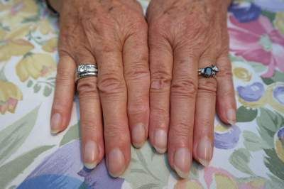 Everyone yearns to have alluring appearance, but your beauty is incomplete without healthy nails. Various factors affect its health and leads to brittle nails. Luckily you can use home remedies for nail discoloration. About 50 percent of nail discoloration is caused by fungal infection. Both fingernails and toenails can be affected resulting in white, green …